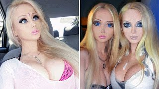 5 People Who Took Surgery Way Too Far