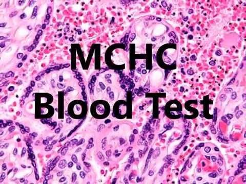 MCHC Blood Test