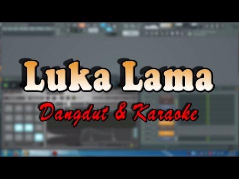 LUKA LAMA (Dangdut & Karaoke Version) cipt. R HUSIN ALBANA