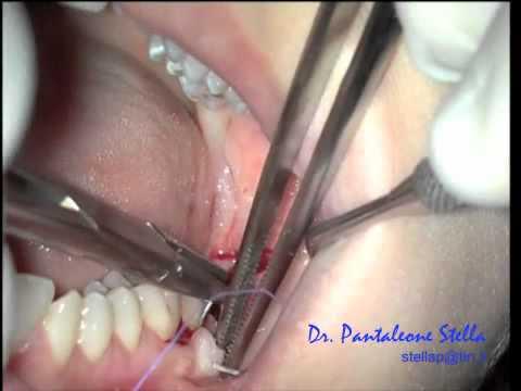 estrazione denti del giudizio one step Studio dr. P. Stella