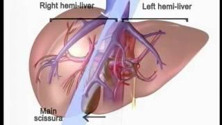 03 Basic Hepatic Anatomy Three Dimensional Model