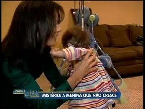 Tudo a Ver 15 07 2011 Nos EUA menina de 17 anos tem corpo e mentalidade de um bebê