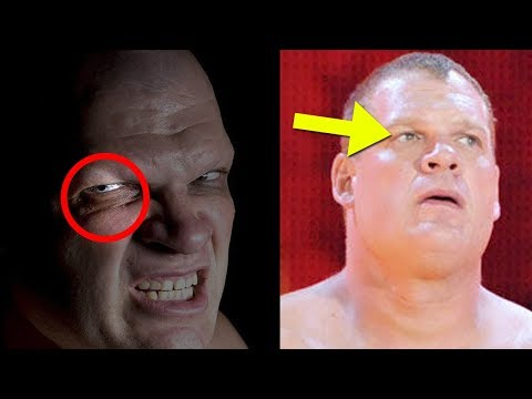 What Happened to Kane's Eye 5 Things WWE NEVER Explained About Kane