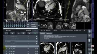 MRI Cardiac