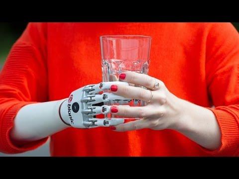 Xxx Mp4 RobotProjects Flash News Mano Bionica 3gp Sex