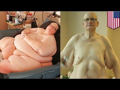 Były najgrubszy człowiek świata traci 27 kilogramów skóry