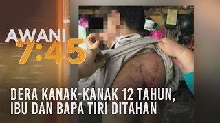 Dera kanak-kanak 12 tahun, ibu dan bapa tiri ditahan
