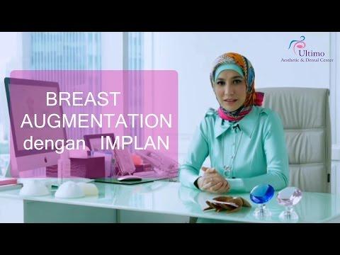 BREAST AUGMENTATION DENGAN IMPLAN - ULTIMO CLINIC