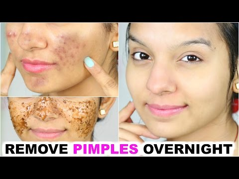 Remove Pimples OVERNIGHT | 100% Success | PrettyPriyaTV