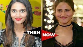 Befikre Actress Vaani Kapoor Plastic Surgery Gone Wrong!