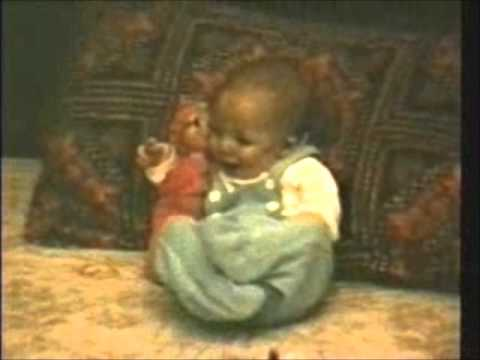 Xxx Mp4 Baby W Rare Disease Miller Syndrome W Sister S Doll Madsens 2 Of 30 Worldwide 3gp Sex