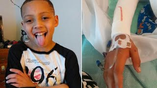 7-Year-Old Boy Doused With Nail Polish Remover and Set on Fire, Mom Says