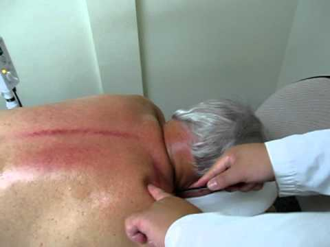 acupuncture and Gua sha treatment for 8 years of chronic shoulder pain