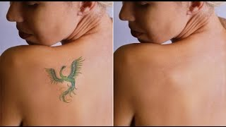 How to remove tattoo ink from skin at home   How to remove tattoo naturally