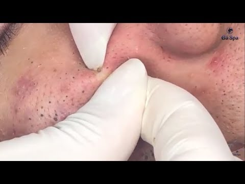 Xxx Mp4 Full Blackhead Popping Video HOT 2019 Part 1 3gp Sex
