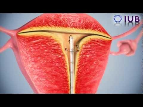New Intrauterine Device IUD Female Contraceptive OLD VERSION