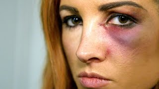 Becky Lynch learns she can