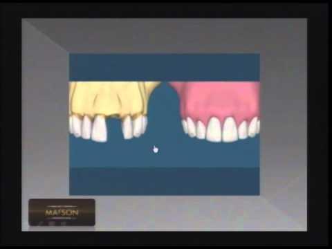 Diferença entre prótese fixa e implantes