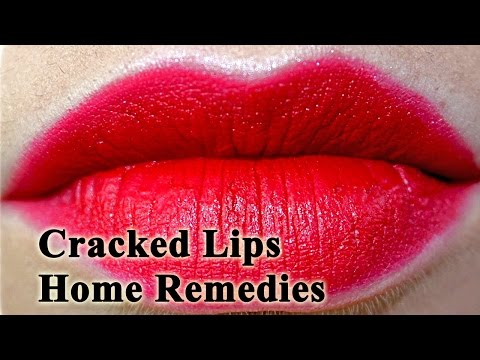 Cracked Lips Remedies - 3 Easy Home Remedies and Beauty Tips For Dry Cracked Lips
