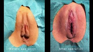 Labiaplasty and Clitoral Hood Operation