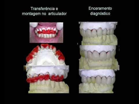 IMPLANTE DENTÁRIO PRÓTESE EM PORCELANA GENGIVA PORCELANA CARGA IMEDIATA implante dentario