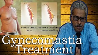 Gynecomastia in Hindi - Discussion and Treatment in Homeopathy by Dr P.S. Tiwari
