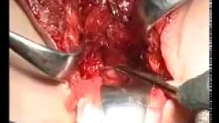 Extrime Operasi Penis Menjadi Vagina
