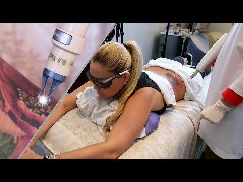 Xxx Mp4 Nurse Jaime Laser Tattoo Removal💉💉 GIVEAWAY TheShannaMoakler 3gp Sex