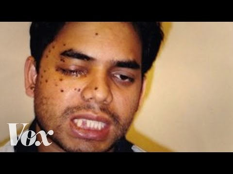 Xxx Mp4 This Muslim American Was Shot After 9 11 Then He Fought To Save His Attacker's Life 3gp Sex