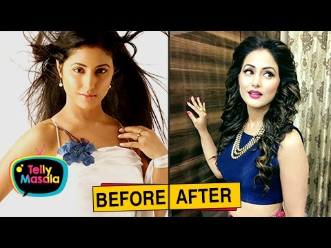 Xxx Mp4 Top TV Actresses Before And After PLASTIC Surgery Mouni Roy Hina Khan And Others 3gp Sex
