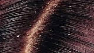 اسهل طريقة للتخلص من قشرة الشعر فى وقت قصير