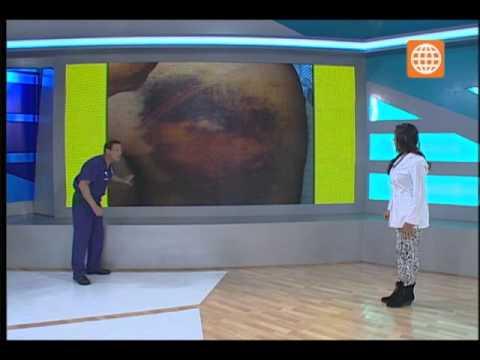 Doctor Tv Cuidado con las inyecciones mal puestas