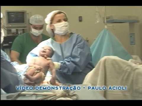 Filmagem de Parto Cesárea Video 1 Paulo Acioli
