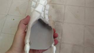Prótese impressa em 3d baseado no modelo flexy hand 2