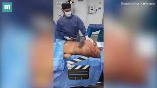 Bác sĩ quay trực tiếp ca bơm mông cho thiếu nữ 25 tuổi - Xem tin tức 24h