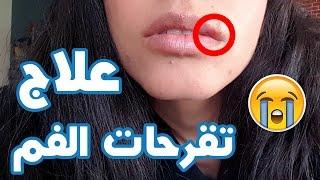 سيما مريضة!علاج تقرحات الفم