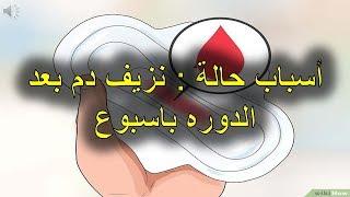 أسباب حالة   نزيف دم بعد الدوره باسبوع