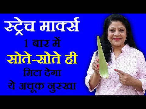 Pregnancy Stretch Marks Remedies स्ट्रेच मार्क्स के उपचार Beauty Tips in Hindi by Sonia Goyal #33