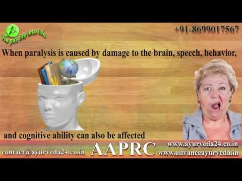 natural methods to cure paralysis