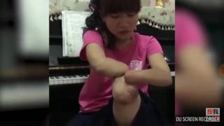Taiwanese quad amputee shows her stump
