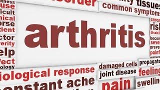 Arthritis Health Rant