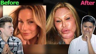 The Worst Plastic Surgery Fails