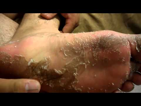 how to take care of a cracked toenail