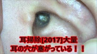 耳掃除[2017]耳の穴が見えない?!大量wスッキリ