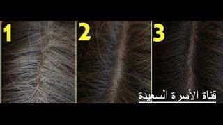 فيديو لازم كل سيدة تشوفه لعلاج الشعر الأبيض ؟؟ - قناة الأسرة السعيدة
