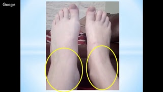 Foot Reading Video 11-14-17