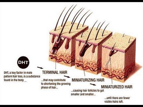 Masturbation And Hair Loss