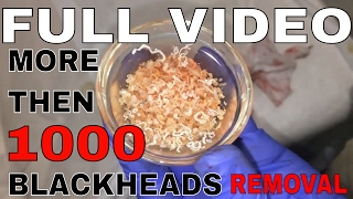 BLACKHEAD REMOVAL FULL VIDEO
