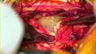 HERNIA DE DISCO LUMBAR (Microdiscectomía).