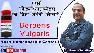 Uses of Berberis Vulgaris in Kidney Stone | Best medicine for kidney stone.